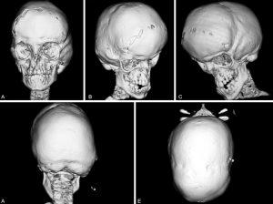 Crouzon-skull-scan